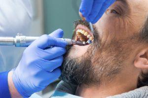 man in dental chair teeth cleaned