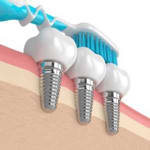 Image of a toothbrush cleaning dental implants in Greenfield.